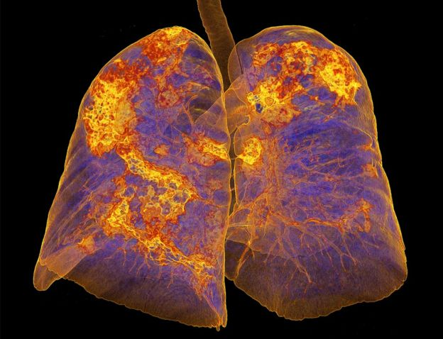 Lungs infected with coronavirus