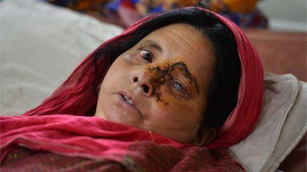 Mujer herida en el ojo