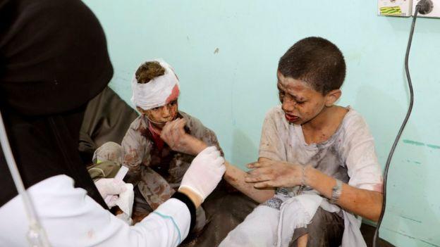 يقول الطبيب الطايفي إن المشاهد التي رآها بعد الهجوم كانت مروعة