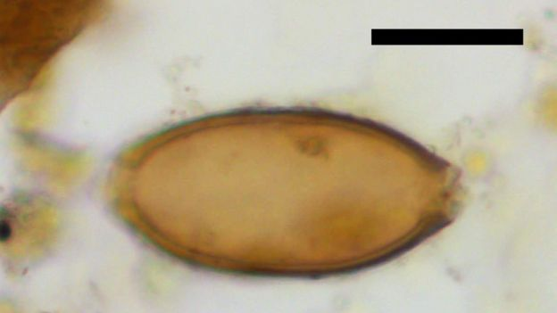 Huevo de parásito hallado en un coprolito