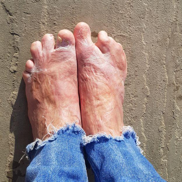 Los pies de Laura
