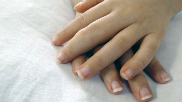Manos de niña de 5 años con artritis