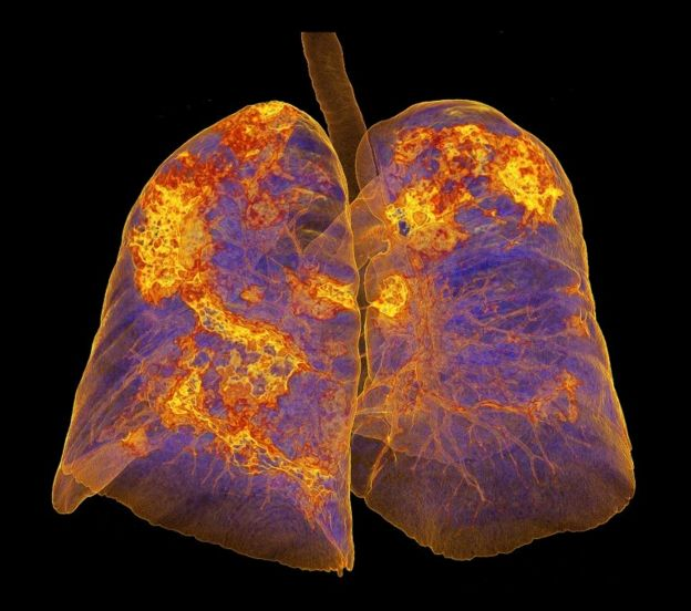 سیتیاسکن ریه مبتلا به کروناویروس