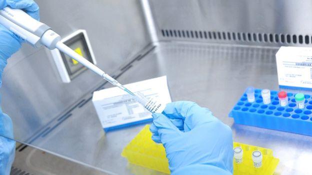 Teste para coronavírus produzido pela Fiocruz