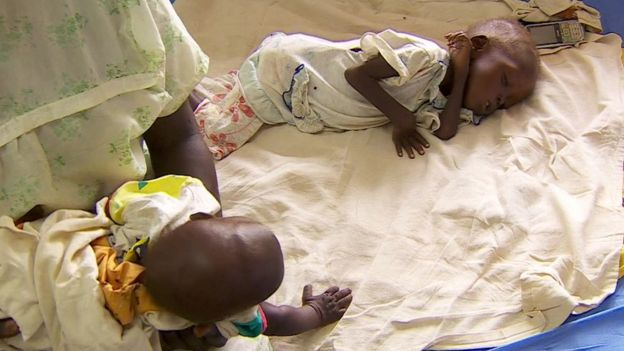 Children suffering from malnutrition in South Sudan