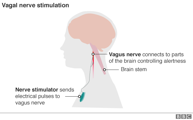 Graphic showing how electrical impulses are sent to vagus nerve