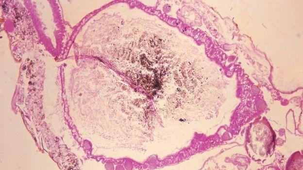 Esta microfotografía muestra el estómago de un mosquito anopheles con el Plasmodium vivax gametes, el parásito que causa la malaria.