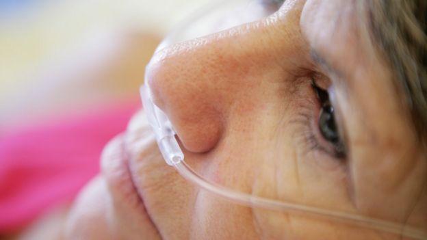 Женщина в кислородной маске