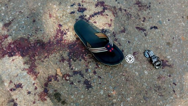 أثار دماء ومتعلقات منثورة