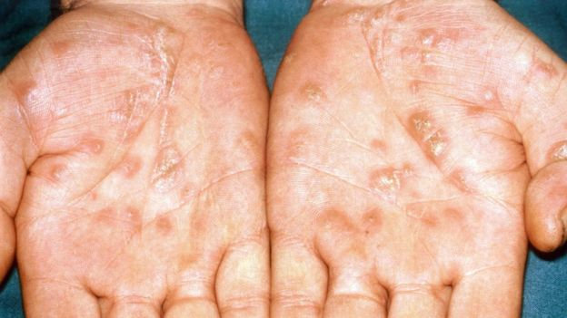 Hands which have a syphilis rash