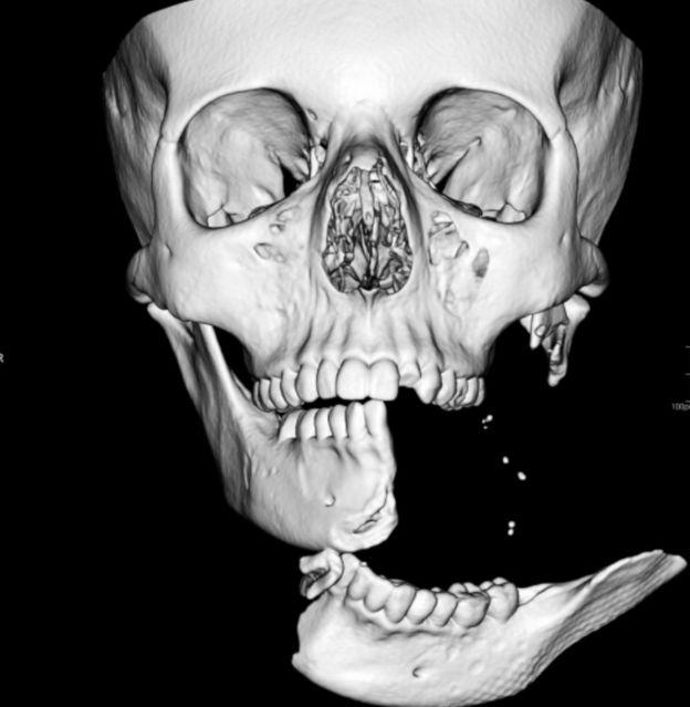Рентгеновский снимок Эмили