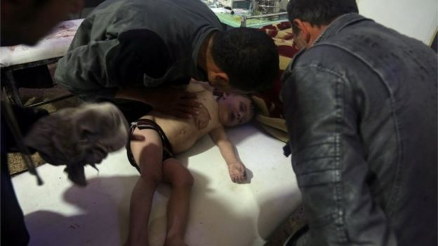 Child treated in Douma after suspected chemical attack (07/04/18)