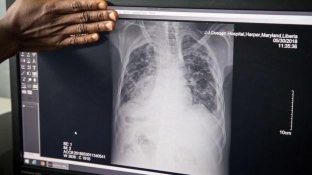 Una radiografía muestra pulmones infectados con tuberculosis