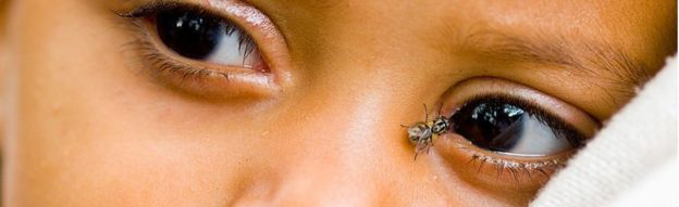 A female Musca Sorbens fly, the vector of trachoma, lands on a baby's eye in Ethiopia