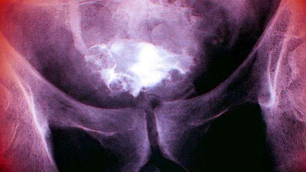 Aucun effet secondaire n'a été observé chez les patients traités par le virus au moyen d'un cathéter jusqu'à la vessie.