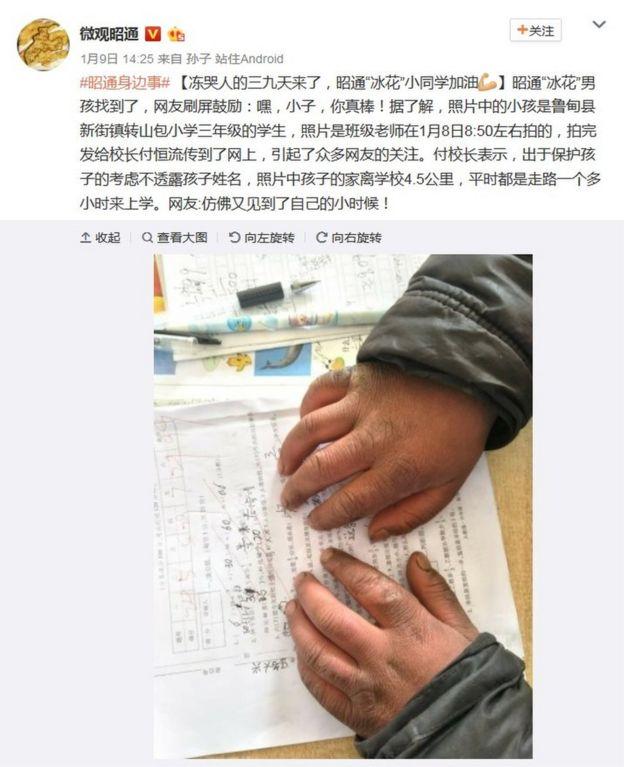 微博截屏:微觀昭通展示王福滿的手