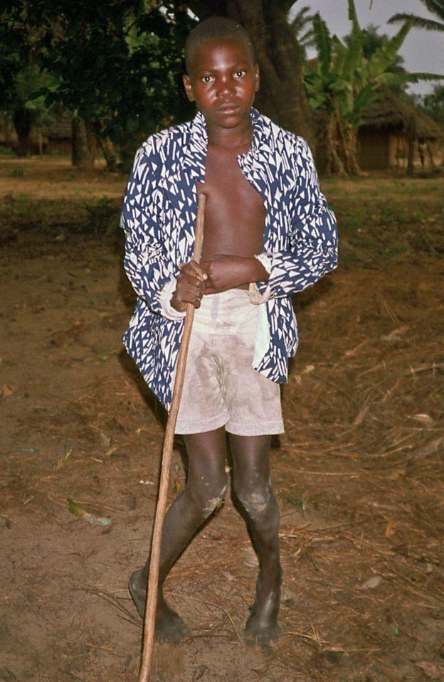 Bacakları felç olmuş bir çocuk, 1986, Zaire