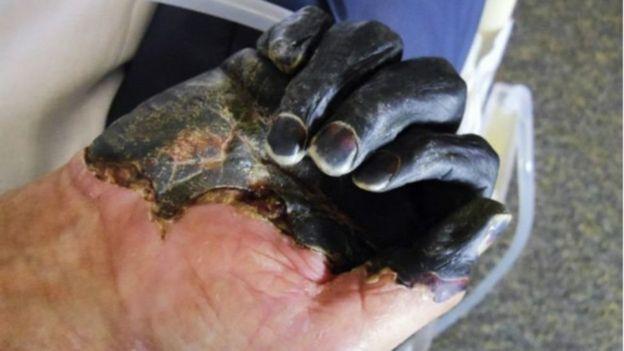 Mão de pessoa com peste negra