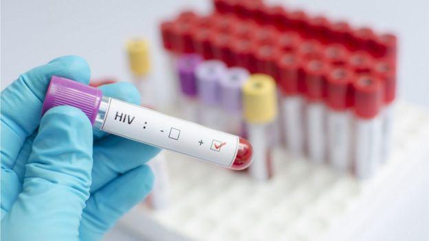 Ampola com sangue com resultado positivo para HIV
