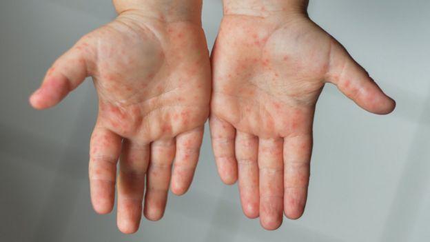 Duas mãos com as palmas para cima mostrando erupções cutâneas, pequenos pontinhos vermelhos