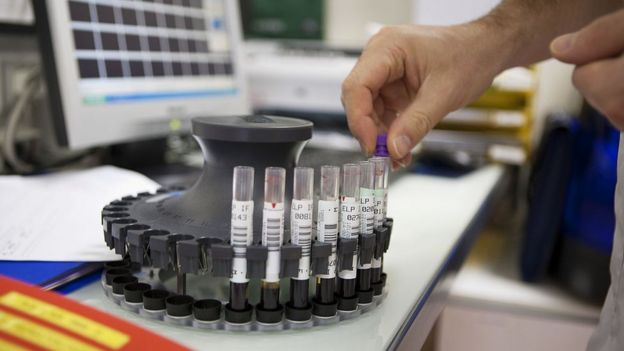 Una prueba de laboratorio médico