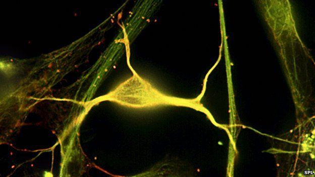 Neurons in hippocampus