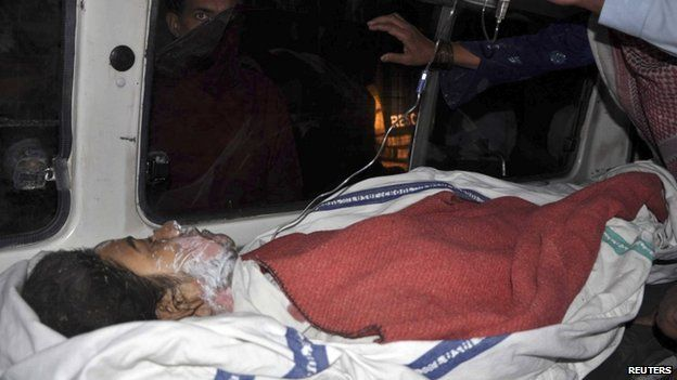 Amina Bibi, who was injured after setting herself on fire, lies in an ambulance after being taken to a hospital for treatment in Multan, Pakistan, on 13 March 2014