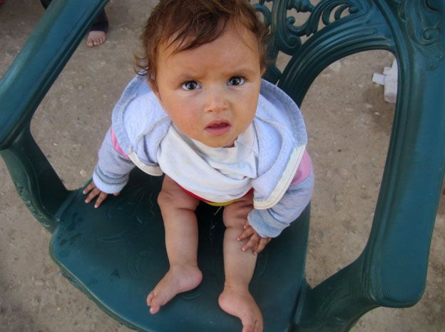 Syrian child with polio