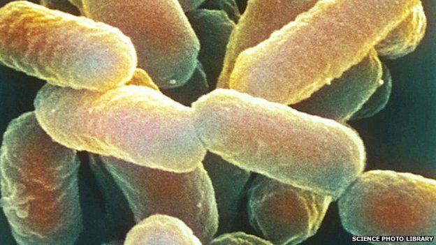 E. coli 0157