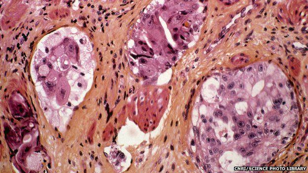 stomach cancer cells