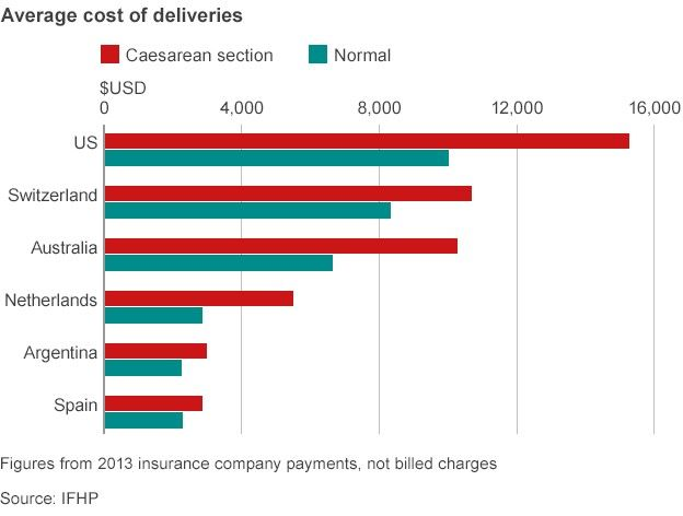 delivery costs chart