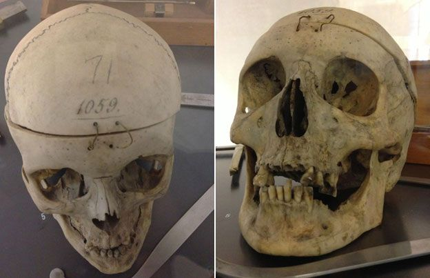 Skulls studied by Lombroso