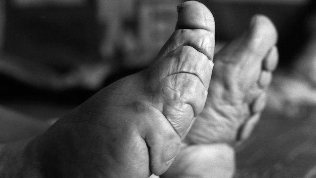 Close up of bound feet