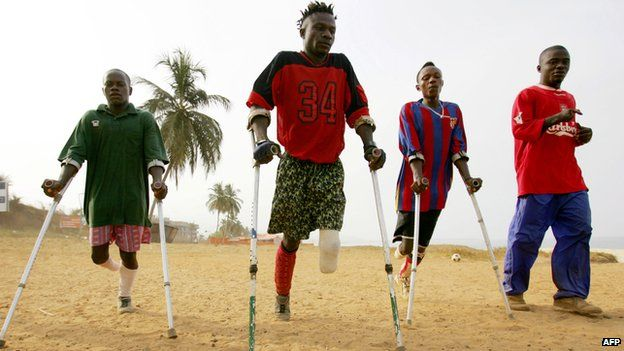 People with missing limbs in Sierra Leone