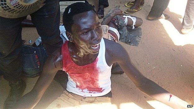 An injured man sits on the ground after a suicide blast in the north-eastern Nigerian town of Potiskum on 3 November 2014