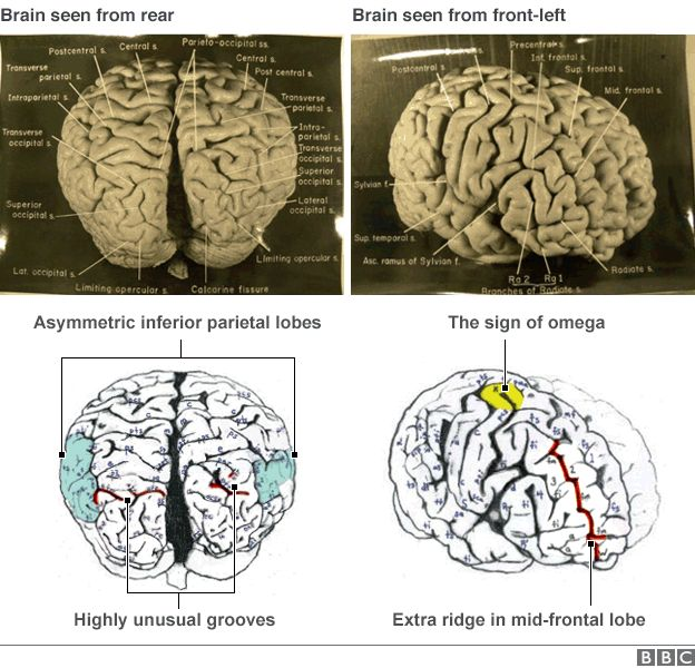Diagrams and pictures of Einstein's brain