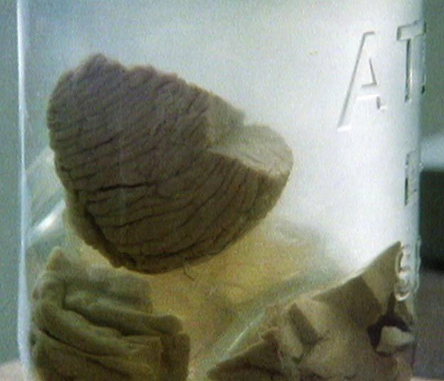 A jar containing Einstein's brain