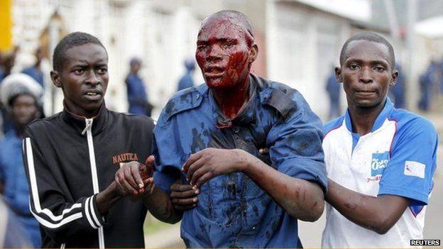 Injured protester in Bujumbura, Burundi on 27 April 2015