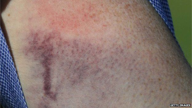 Close up of a bruise on 1 March 2007.