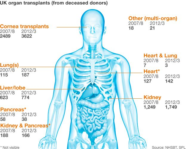 Organ donation graphic