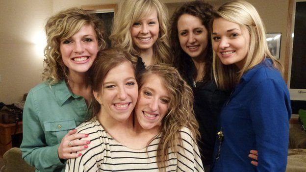 Abby and Brittany Hensel with their friends
