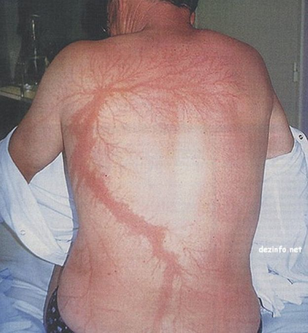 A manu0027s back with lightning injuries that look like flower or tree branches.   & How do you recover from being struck by lightning? - BBC News