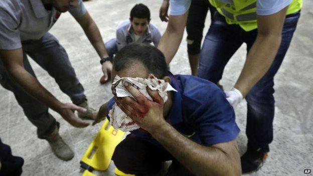 Injured man at blast scene, south Beirut (19 Nov)