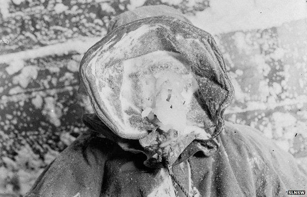 """An expedition member with an """"ice mask"""""""