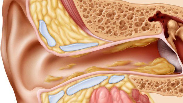 Secretion secrets things you didnt know about ear wax bbc news the cul de sac of the ear canal ccuart Image collections