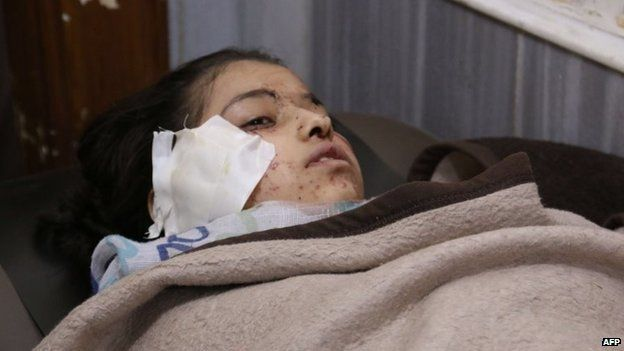 A girl injured in the air strike on Ain Jalout school (30 April 2014)