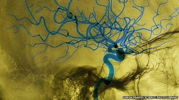haemorrhagic stroke