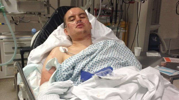 Bart in hospital after the accident