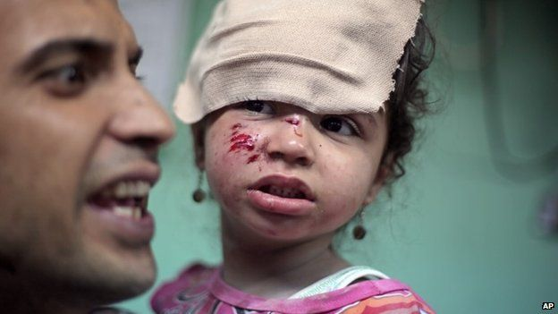 A Palestinian man carries a wounded girl at the Kamal Adwan hospital in Beit Lahiya after receiving treatment for her wounds caused by an Israeli strike at a UN school in Jebalia refugee camp, northern Gaza Strip, Wednesday, July 30