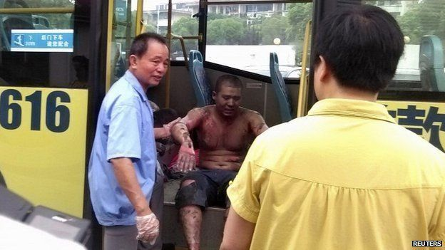 Rescue workers help an injured man into a hospital near the site of the factory explosion in Kunshan - 2 August 2014